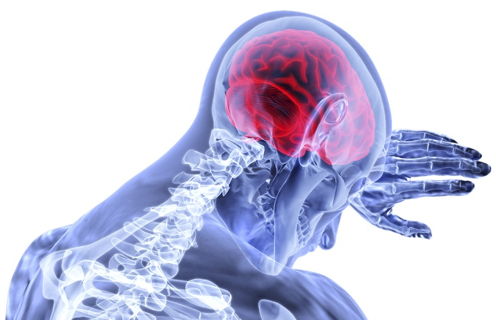 Tratamento da esclerose múltipla no SUS terá menos efeitos adversos