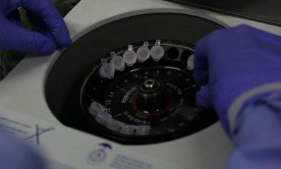Funed realiza exames de coronavírus a partir desta quinta-feira (12/3)