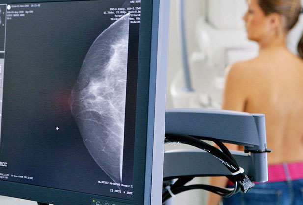 FAMA promove o Dia D da mamografia nesta quinta-feira (14)